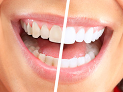 Teeth Whitening in Mishawaka, IN   Dr. George Mighion