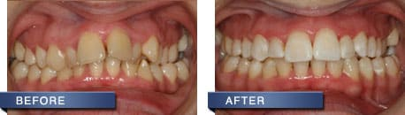 six month smile before and after | The Houston Dentists
