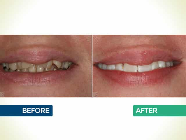 6 Month Smiles in Mishawaka, IN   Dr. George Mighion