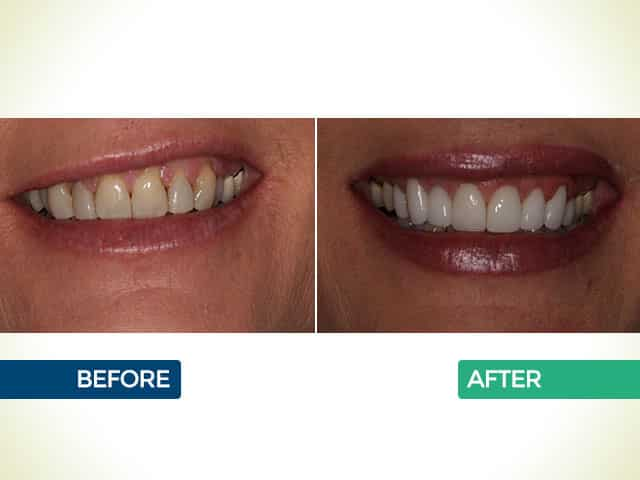 Upper 8 Crowns with Gum Grafts in Mishawaka, IN   Dr. George Mighion