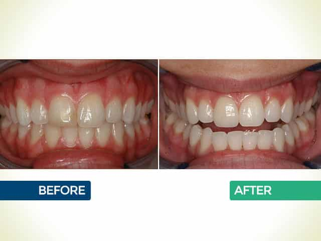 Invisalign in Bellaire Houston, TX   The Huston Dentists   Dr. Fraza