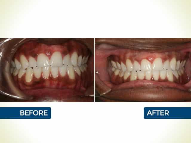 Gum Pigmentation in Mishawaka, IN   Dr. George Mighion