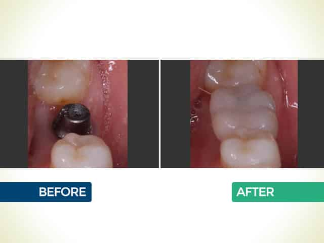 Dental Implants in Mishawaka, IN   Dr. George Mighion