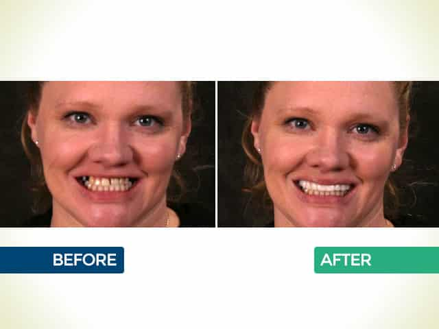 Snap On Smile in Mishawaka, IN   Dr. George Mighion