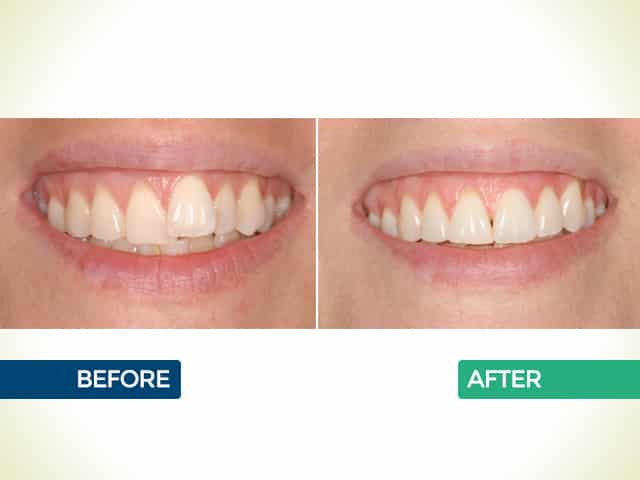 Invisalign in Mishawaka, IN | Dr. George Mighion