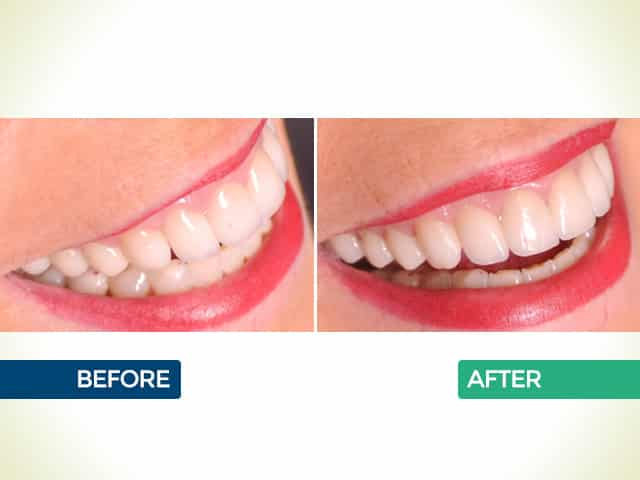 Veneers in Mishawaka, IN | Dr. George Mighion